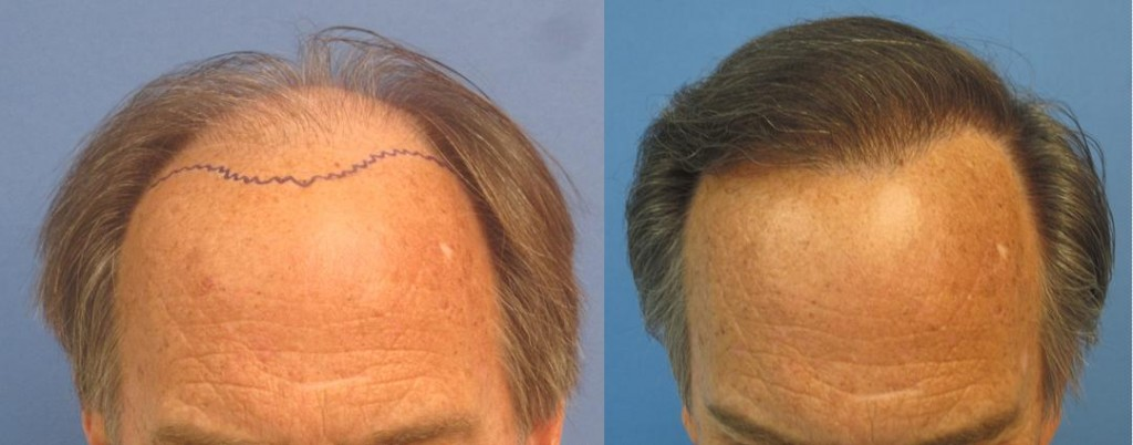 Before and after 2,256 grafts placed in one session. Class 6.