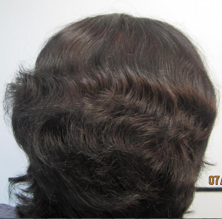 Hair Transplant Image After Surgery