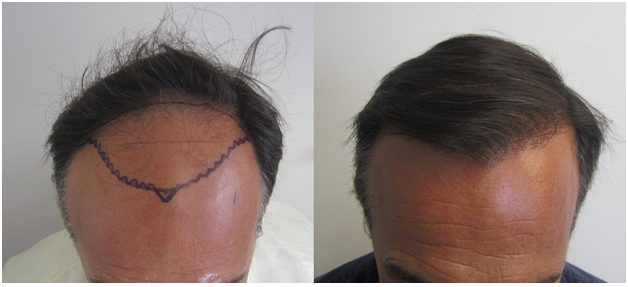 Class 4. Front view. He had approximately 2,000 grafts placed in one session.