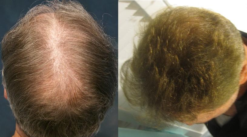 Hair transplant restoration Los Angeles