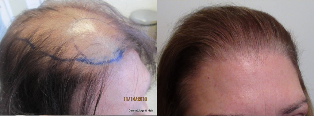 This women had 1830 grafts placed in one session.  This woman had ludwig class 3 hair loss.