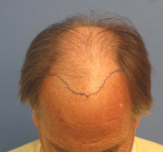 Hair Transplant Image Before Surgery