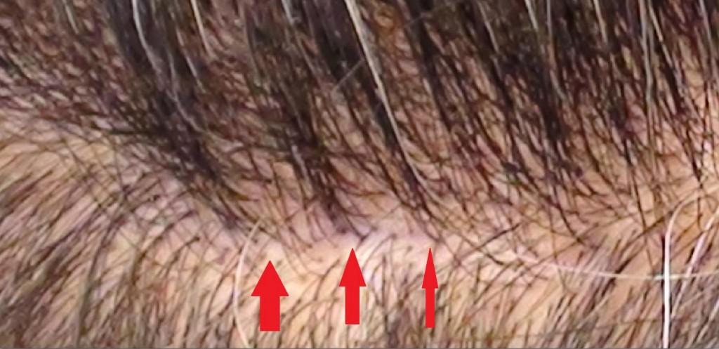 Hair Transplant Los Angles Ca