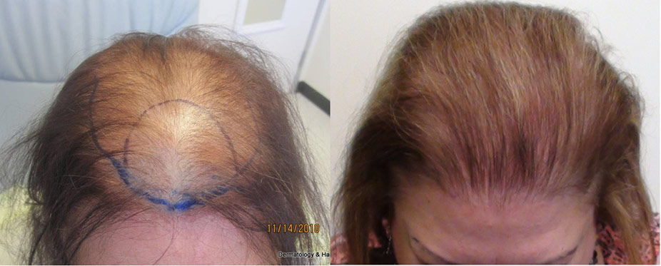 womens-hair-restoration-la