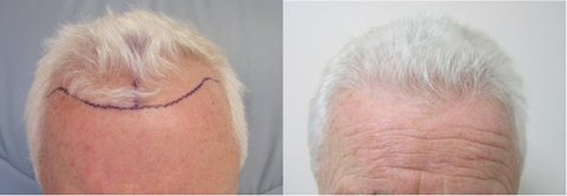 natural looking hair transplant. We have the technology to transplant 100% grey hair.