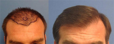 The entire hairline is transplanted. Single hair follicles are placed in the hairline so it looks natural and NOT pluggy. No one would notice that this hairline is transplanted.