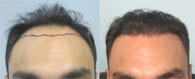 Before and after hair restoration.